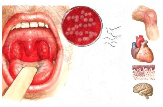 Осложнения стрептококковой инфекции горла