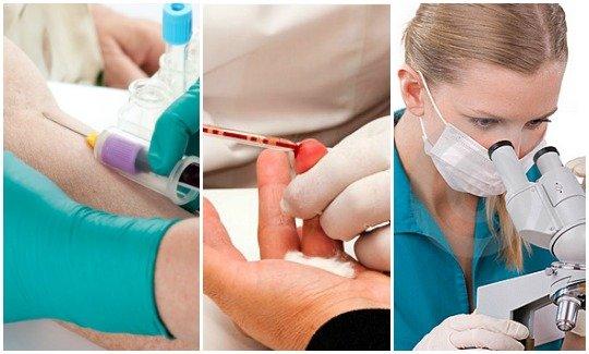 Методы диагностики при ихтиозе