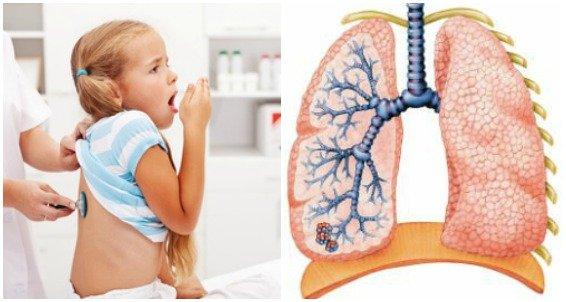 Вирусная пневмония – осложнение аденовирусной инфекции