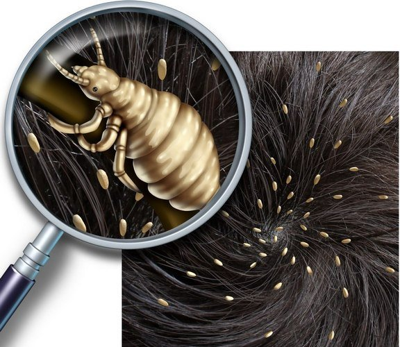 Вши откладывают яйца, плотно прикрепляя их к волосам