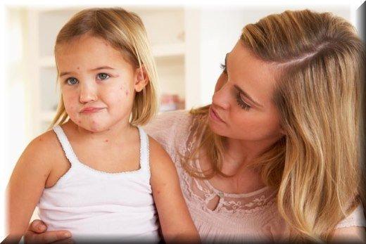 Ветрянка – детское инфекционное заболевание, часто встречающееся у взрослых