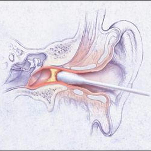 Основная причина заболеваний наружного уха!!!!! Так делать не стоит!!!!!!