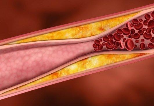 Атеросклеротические бляшки в сосудах головного мозга
