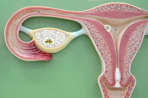 Миома – доброкачественная опухоль матки