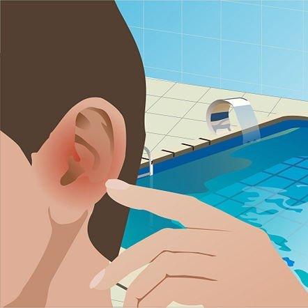 Попадание в уши воды - частая причина отомикоза.