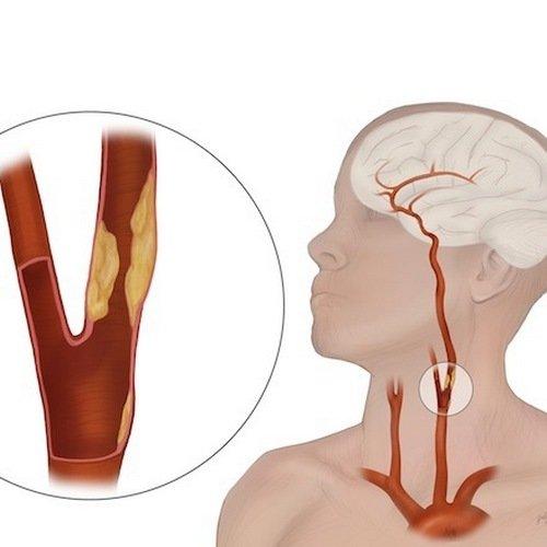 Атеросклеротическая закупорка сонной артерии может лечится хирургически.