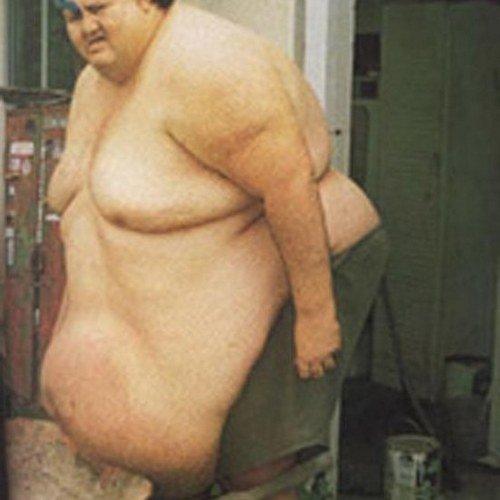 Абдоминальное ожирение - фактор риска атеросклероза.