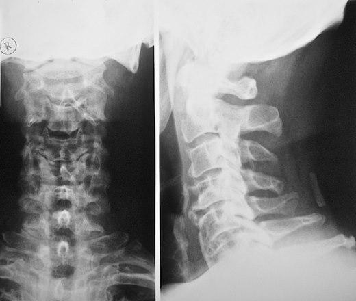 Рентгеновский снимок шейного остеохондроза