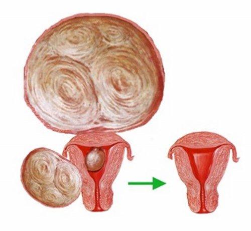 Опухолевидные процессы при миоме матки