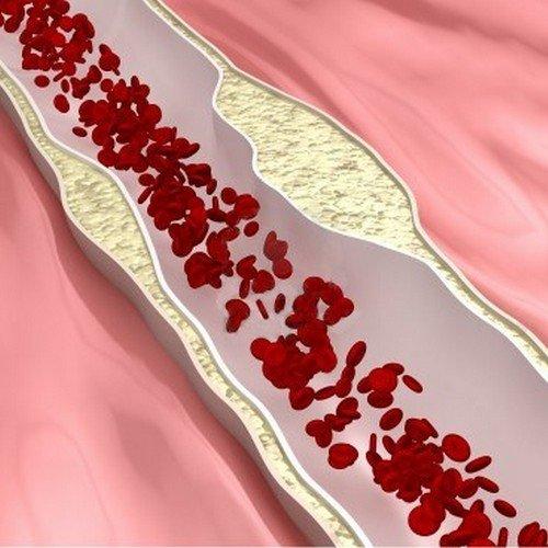 Прогрессивное сужение сосудов приводит к нарастанию симптоматики болезни.