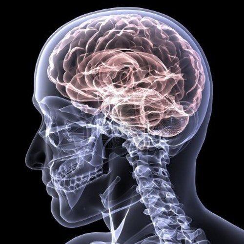 Атеросклероз сосудов головного мозга проще предотвратить, чем излечить!!!!