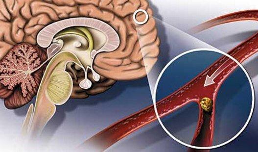 Сужение сосудов соединительными жировыми тканями