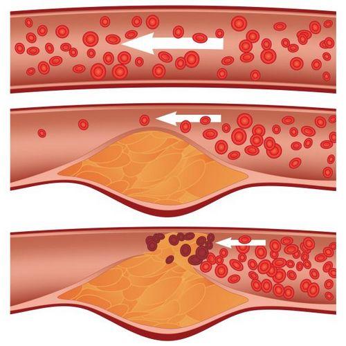 Атеросклероз приводит к сужению просвета сосуда и нарушению тока крови.