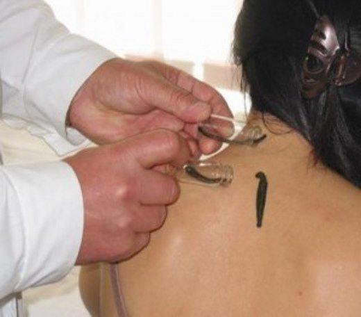 Гирудотерапия – лечит шейный остеохондроз