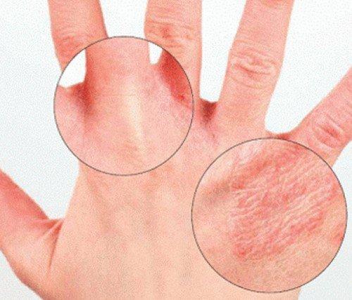 трескается кожа рук