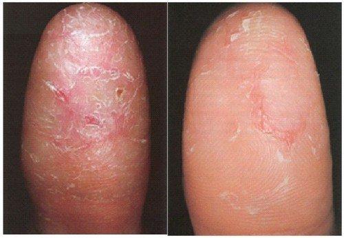 сухая кожа пальцев рук