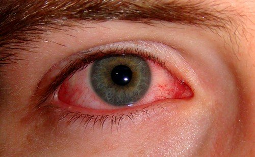 конъюктивит Синдром Рейтера