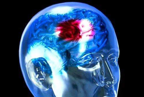 Симптоматика инсульта при разных типах болезни