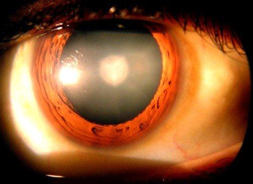 Глазное давление - симптомы и лечение лекарствами или народными средствами