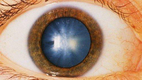 Симптоматика и признаки глаукомы