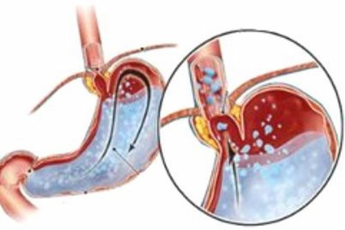 Повышенная секреция желудочного сока