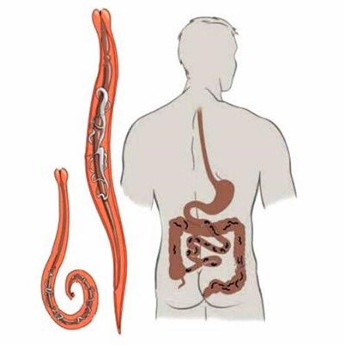 Глисты могут паразитировать как в кишечнике, так и внутренних органах