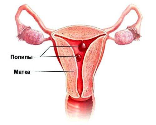 Полипы в матке: симптомы и лечение