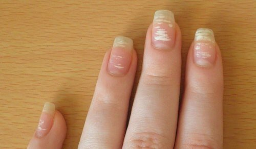 Лейконихия или белые пятна на ногтях