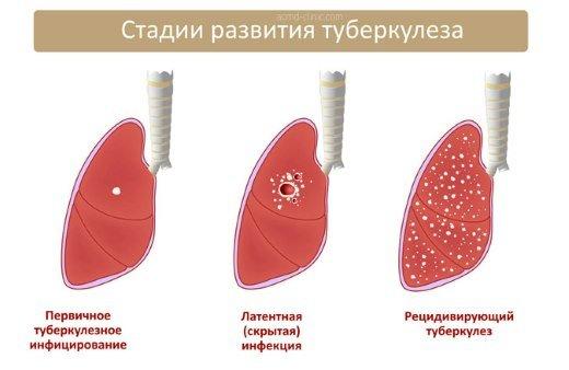 Этапы развития туберкулеза