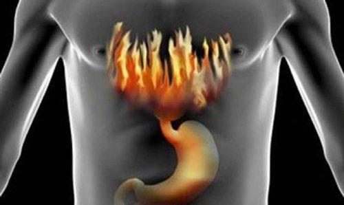 Изжога – первый признак гастрита с повышенной кислотностью