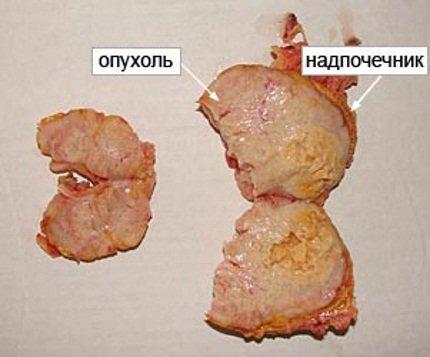 Опухоли коры надпочечников