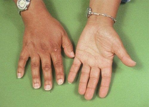 Болезнь Аддисона (бронзовая болезнь)