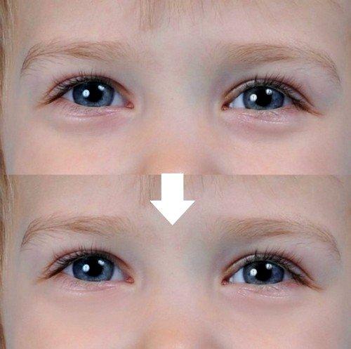 Косметические средства для устранения синяков под глазами