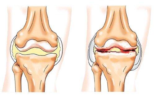 наследственность как причина артроза плечевого сустава