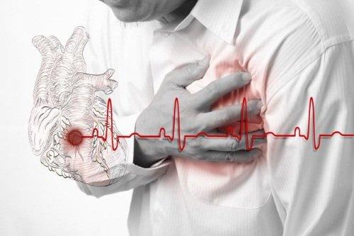 Онемение левой руки – предвестник заболеваний сердца