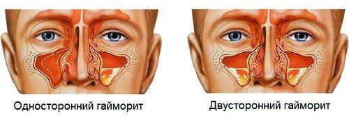 Симптомы различных форм патологии