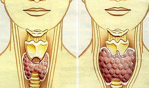 причины узлов на щитовидной железе