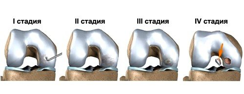 Рассекающий остеохондроз