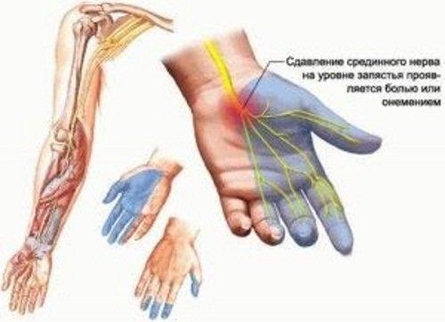 Сдавливание нервных окончаний – причина онемения левой руки