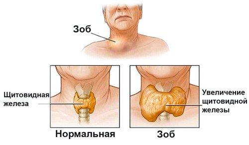 Узловой зоб щитовидной железы