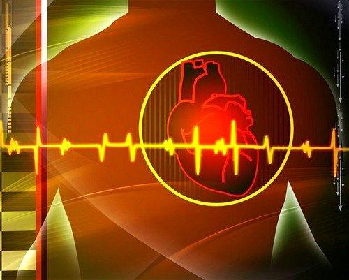 В каких случаях возникает инфаркт