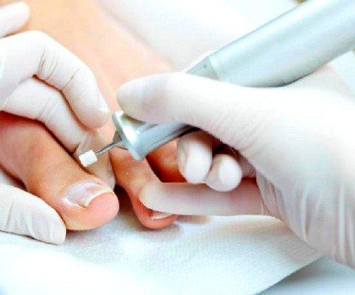 Лечение грибка большого ногтя