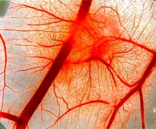 Слабость венозной стенки как причина возникновения варикоцеле