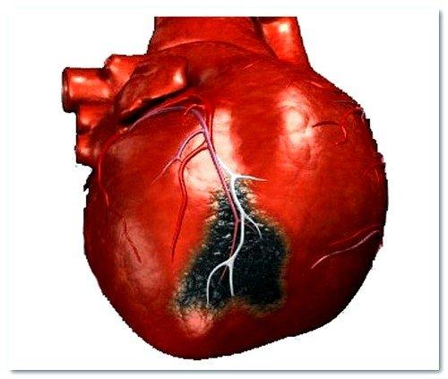 Как еще протекает предынфарктное состояние