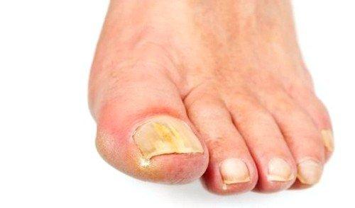 Симптомы грибкового заболевания на ногах