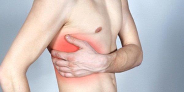 Межреберная невралгия – осложнение остеохондроза