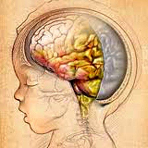 Вирусный серозный менингит