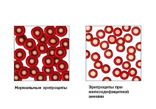 Понятие анемии