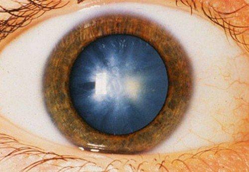при катаракте возникает помутнение хрусталика