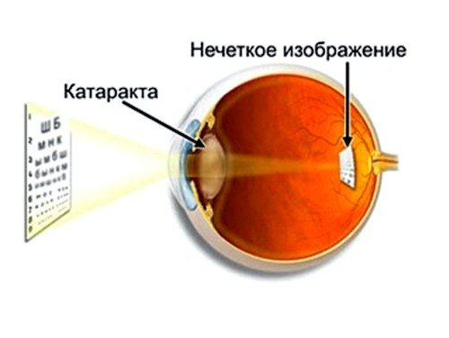 Причины катаракты